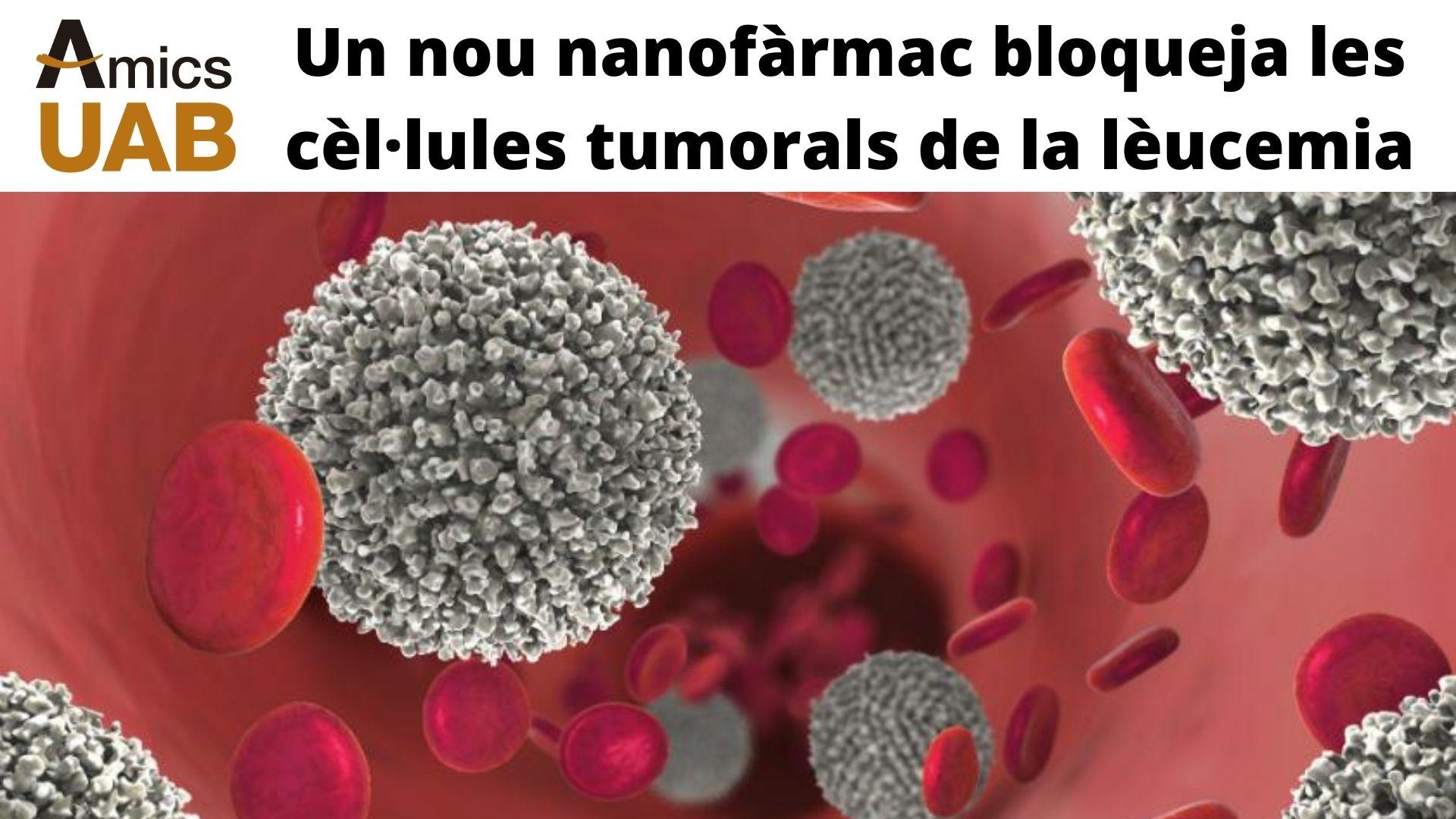 Leucèmia